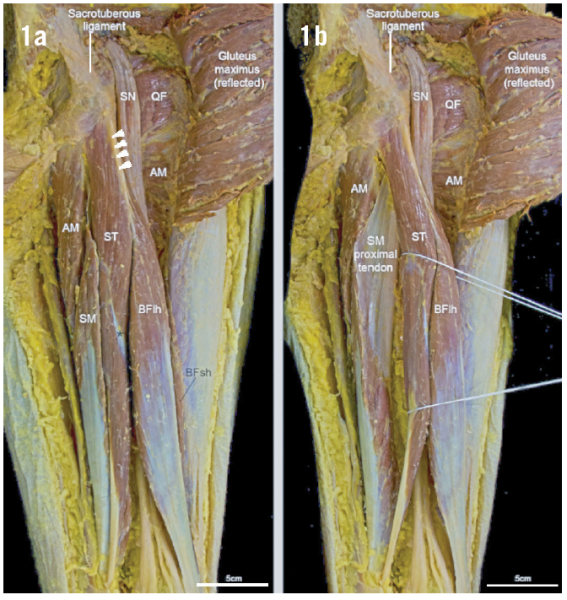 Aspetar Sports Medicine Journal Review Of Hamstring Anatomy