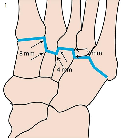 Aspetar Sports Medicine Journal Imaging Of Lisfranc Injuries In