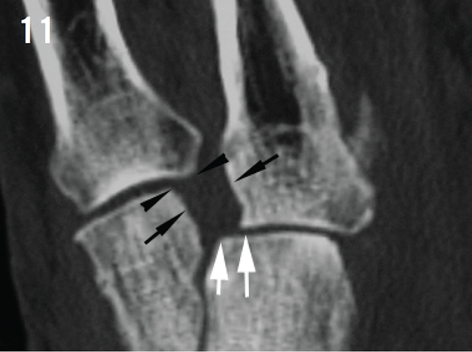 Aspetar Sports Medicine Journal - Imaging of Lisfranc injuries in ...