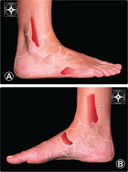 Aspetar Sports Medicine Journal Ankle Sprain Diagnosis And