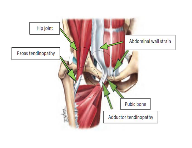 Aspetar Sports Medicine Journal - Chronic groin pain among athletes ...