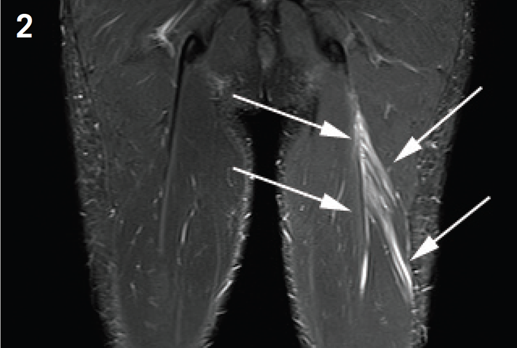 Aspetar Sports Medicine Journal - Imaging of lower limb muscle injury
