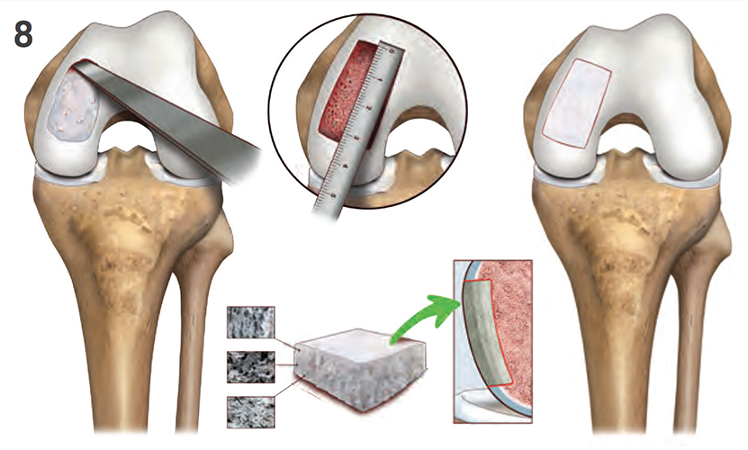 Aspetar Sports Medicine Journal - New approaches to meniscal