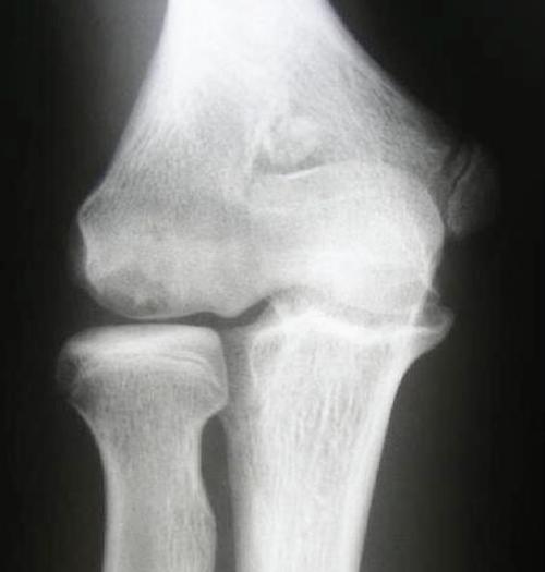 Aspetar Sports Medicine Journal Elbow Arthroscopy For