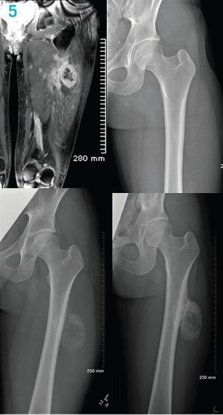 Aspetar Sports Medicine Journal Fracture Complications