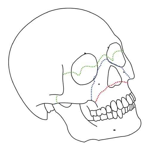 Aspetar Sports Medicine Journal - Sports-related jaw fractures