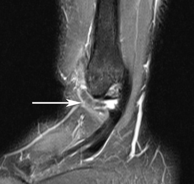 Aspetar Sports Medicine Journal Mri Of Ankle And Foot Injuries In