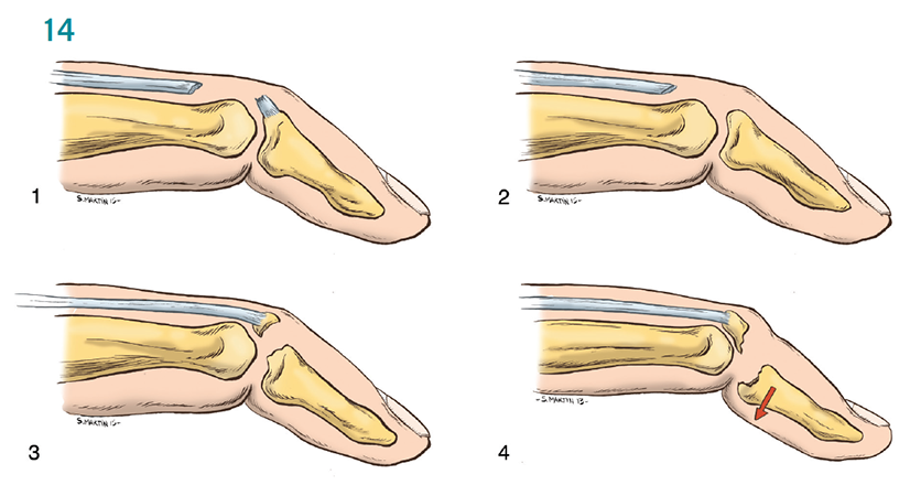 Aspetar Sports Medicine Journal - Acute finger injuries in handball