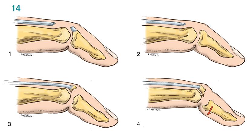Aspetar Sports Medicine Journal - Acute finger injuries in handball