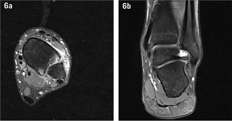 Aspetar Sports Medicine Journal - Torn ankle ligaments in elite ...