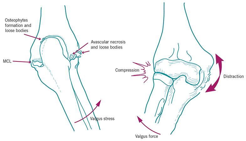 Aspetar Sports Medicine Journal Handball Elbow