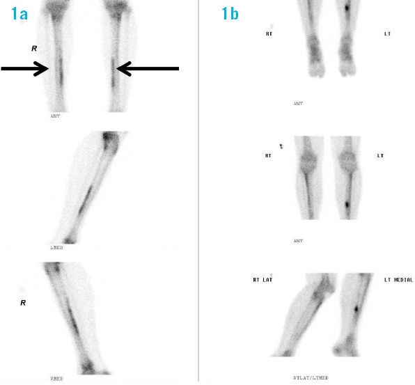 Aspetar Sports Medicine Journal The Role Of Imaging In Tibia Stress Injury